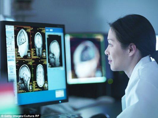 الذكاء الاصطناعي ينتصر على الأطباء في سرعة كشف الزهايمر